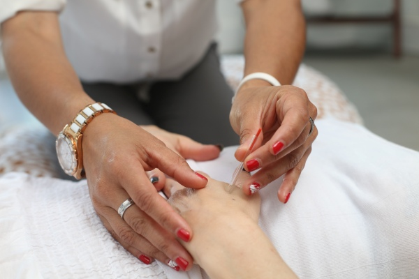 A woman placing acupuncture needles on a hand